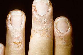 تقشير جلد الاصابع