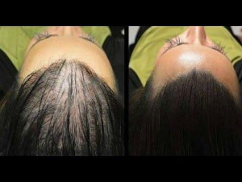 خلطات لنمو الشعر فى مقدمة الراس