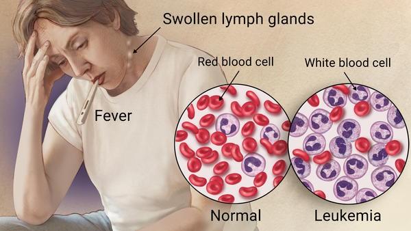 سرطان الدم الخبيث