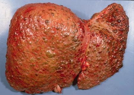 سرطان الكبد
