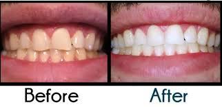 ما هي مواصفات أفضل معجون أسنان للتبيض؟