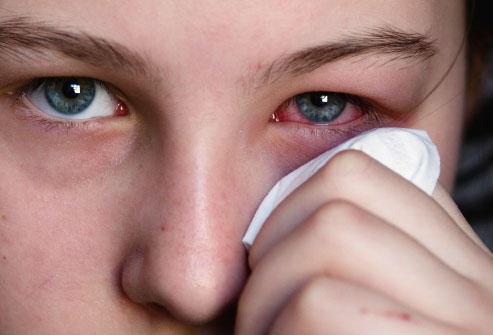 تنظيف العين من الشوائب