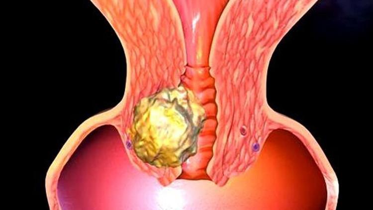 cervical-cancer