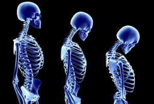fat-blood-osteoporosis-risk