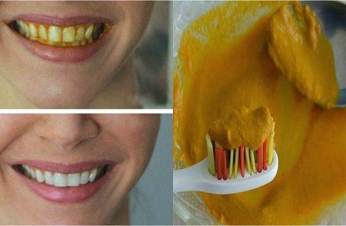 طرق تبييض الاسنان بالكركم