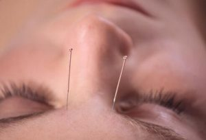 acupuncture-s5-photo-of-needles-in-forehead