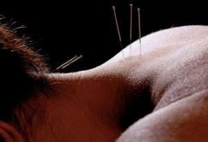acupuncture-s6-photo-of-acupuncture-in-neck