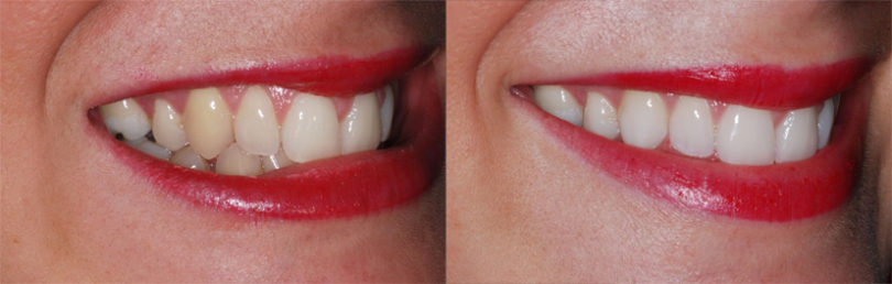 خلطات و طرق تبييض الأسنان طبيعيا بالمنزل بسرعة