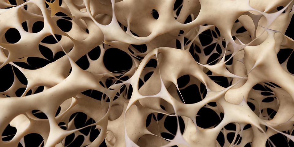 كيف تحمي نفسك من هشاشة العظام