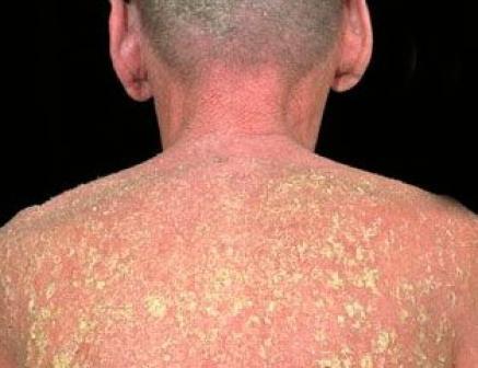 علاقة الزنك بالامراض الجلدية