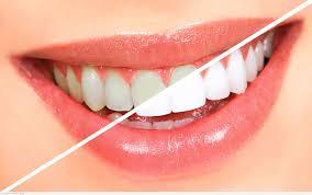 علاج اصفرار الأسنان بطرق طبيعية
