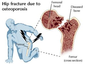 hip_osteoporosis-63