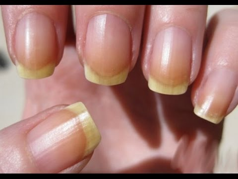 Ways to clean nails from dirt