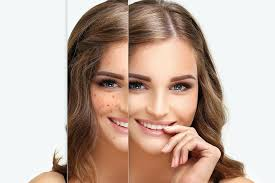طريقة القضاء على نمش الوجه