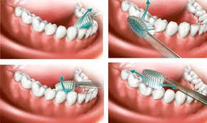 طرق تنظيف الاسنان