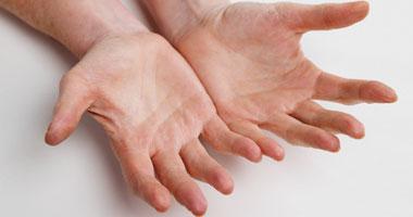 أسباب تقشر الجلد في اليدين